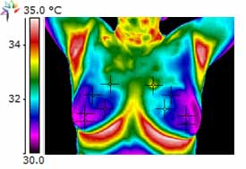 Thermography Breast Scan I3C Supplementation After