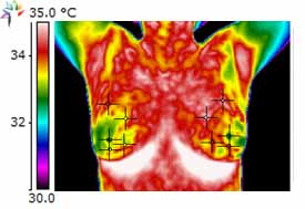 Thermography Breast Scan I3C Supplementation Before