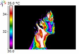 Thermography image Gingival Inflammation