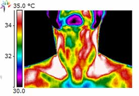 Thermography Carotid Occlusal Disease