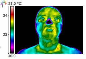 Thermography Decreased Thyroid function