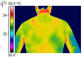 Thermography Neck Posterior