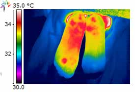 Thermography Plantar Fasciitis image